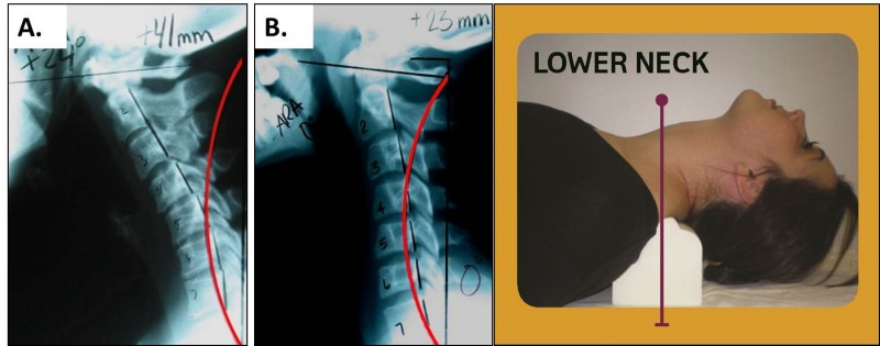 prevention and correction of kyphosis He primarily aimed at prevention of deterioration of kyphosis and not for kyphosis correction louw reported a series of 19 patients of tb spine of dorsal and dorsolumbar region with neural deficit.