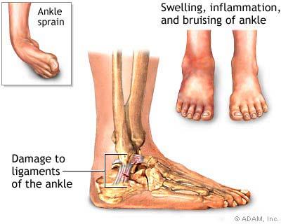 ankle_sprain