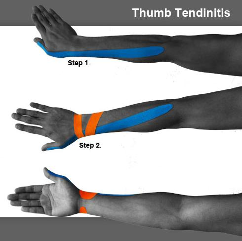 10_thumb_tendinitis