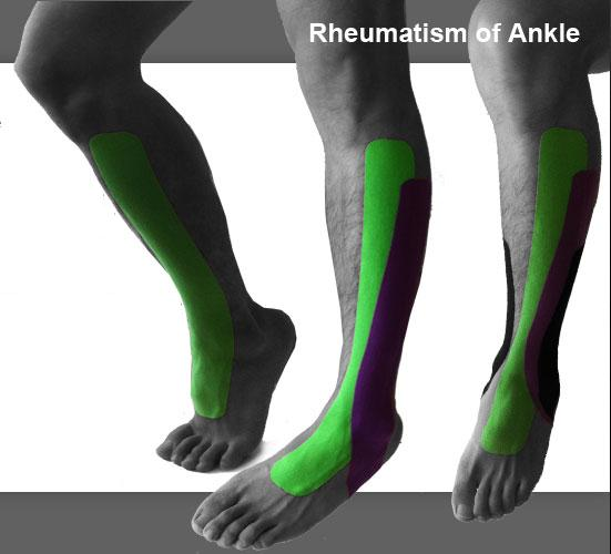 ankle_rheuma