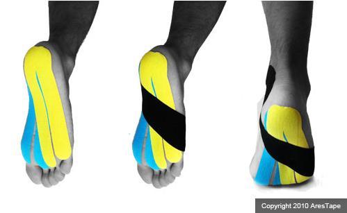 flat_foot